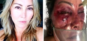Elaine Caparróz: antes e depois da agressão.